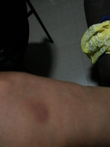 another bruise left leg