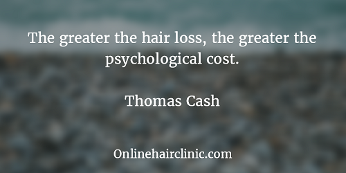 The-greater-the-hair-loss-the-greater-the-psychological-cost